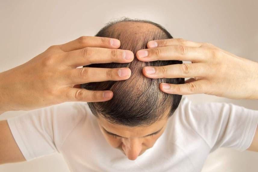 cấy tóc có an toàn không