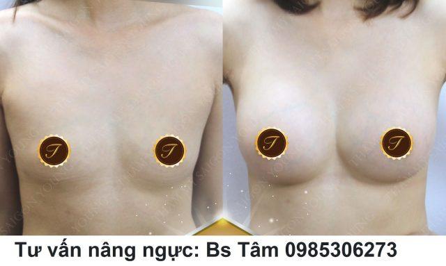 nang-nguc-tui-don-ca-7 (1)